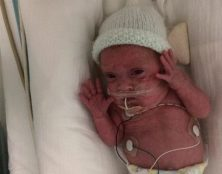 Avorter, c'est tuer cet enfant né avant la fin du délai légal en Angleterre