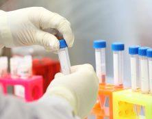 Un partenariat stratégique pour la recherche sur la trisomie 21 et la maladie d'Alzheimer