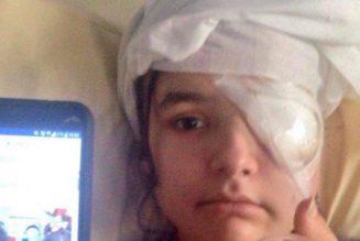 Fiorina, 20 ans, éborgnée par les forces du régime Macron !