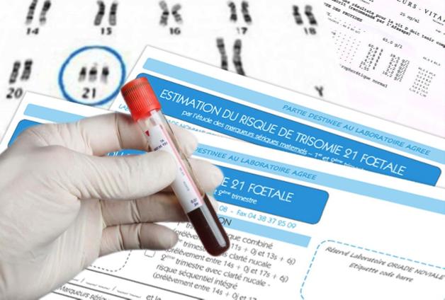 Dépistage prénatal et manipulations génétiques dans la loi de bioéthique : la fondation Lejeune attentive