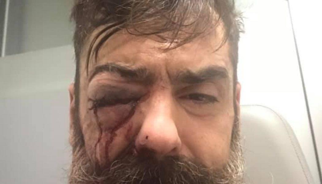 En train de filmer, il s'est fait tirer au niveau du visage au flashball
