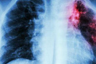 La tuberculose augmente, comme l'immigration